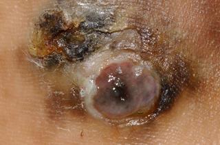 acral lentiginous melanoma on skin