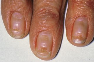 Nails with deep horizontal lines