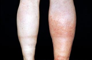 swollen right leg
