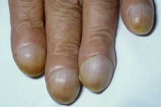 Clubbed finger nails
