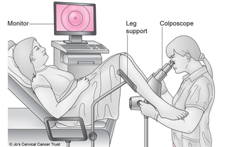 woman on medical chair with doctor performing colposcopy