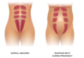 During pregnancy your muscles can stretch causing DRAM (right) through the middle of your tummy