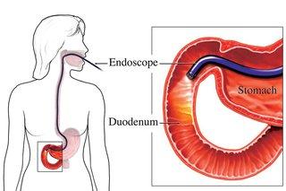 diagram of endoscopy