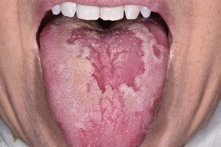 patches on tongue