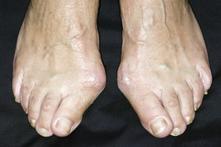 Feet with hard lumps on the side by the big toes