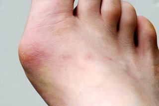 A hard, red lump on the side of a foot by the big toe