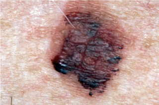 lentigo maligna melanoma on skin