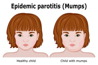 A healthy child and a child with mumps. The child with mumps has swollen cheeks.