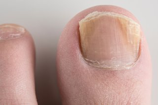The nail on a person's big toe. The sides of the nail are yellow and the edge that's trimmed is flaky