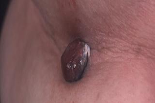 nodular melanoma on skin