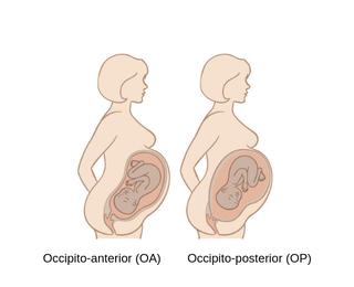 Occipito-anterior and occipito-posterior position