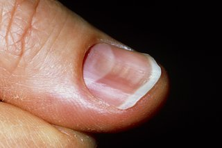 Spoon-shaped nail that curves inwards