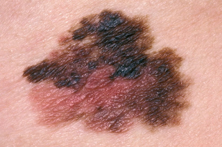 melanoma on skin