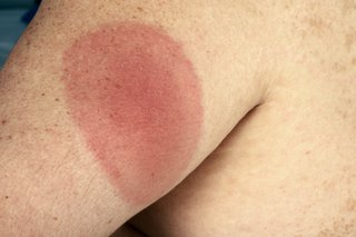 A round, red rash with a slightly darker centre, on the upper arm, caused by Lyme disease. Shown on white skin.