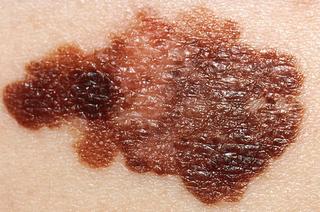 asymmetrical melanoma on skin
