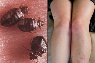 Close up of bed bugs on white skin and bedbug bites on the legs