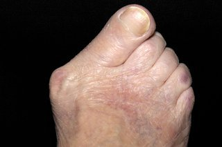 Foot with the big toe pointing to the side towards the other toes