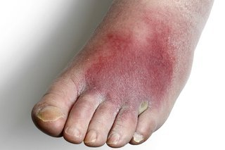 Foot with white skin. The top of the foot is red and swollen.
