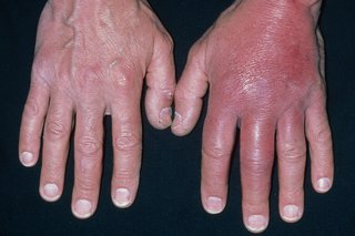 Cellulitis on the hand