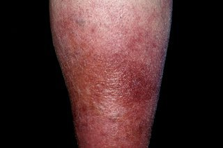 lower leg with red and swollen skin
