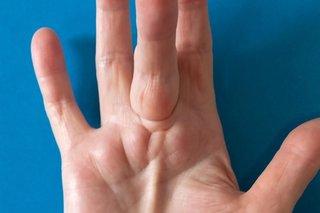 Bent finger