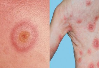 target lesion of erythema multiforme on the skin