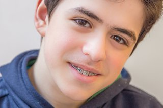 fixed braces on a child