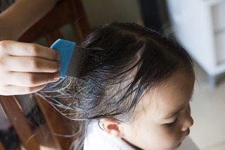 head lice wet comb