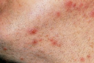 Close up of raised, red spots on a man's neck and chin