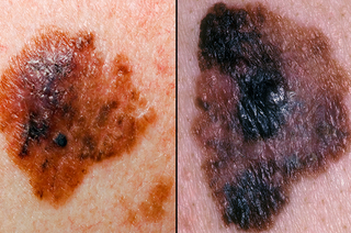 Picture showing notched or ragged border of a melanoma