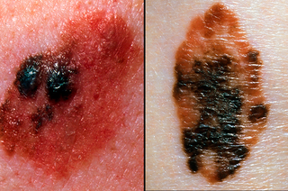 Picture showing colours of a melanoma