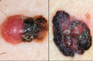 picture showing an elevated or raised melanoma