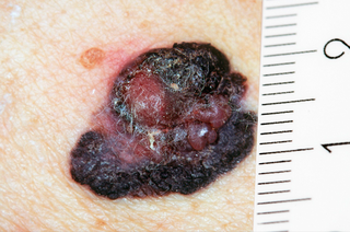 picture showing size of melanoma against a ruler