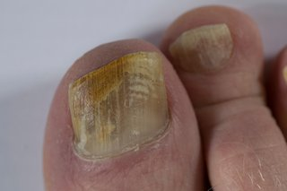 Toenails are covered in pale yellow and brown patches and lines