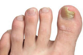 The nail on a person's big toe is yellow and crumbling. It has a piece missing over the tip of the toe.