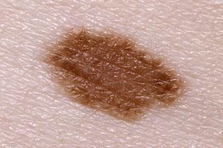 normal mole on skin