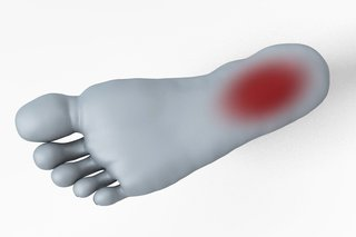 Diagram of the sole of a foot with a red oval on the heel area
