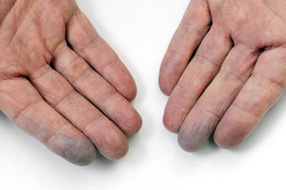 hands with blue fingertips