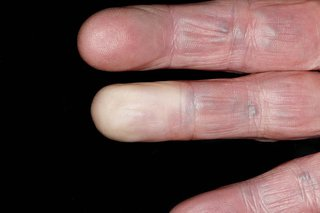 hands with white fingertips