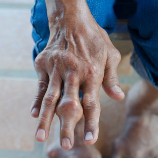 Fingers of person with gout