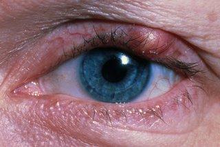 a stye on the upper eyelid