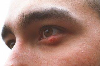 a stye on the lower eyelid