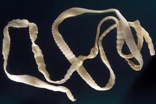 A long, flat, pale yellow tapeworm